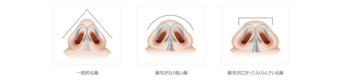 鼻が高い人と大きい人の軟骨の形状の違い