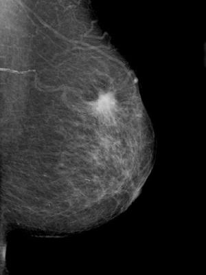 2014年10月に乳がんを知らされる